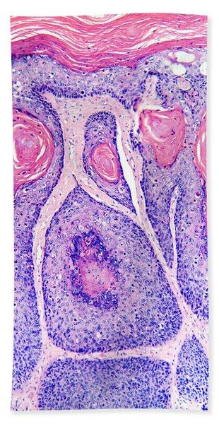 Skin Cancer, Bowens Disease, Lm Bath Towel