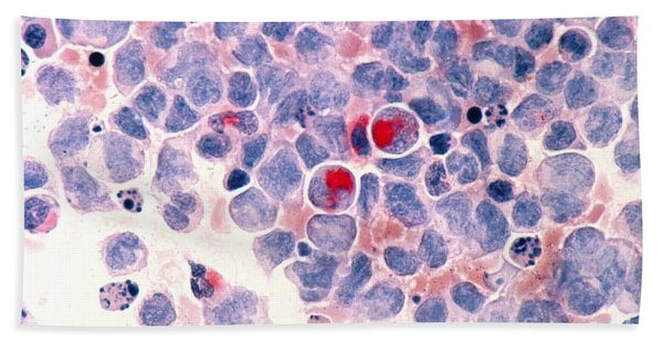 Myelocytic Leukemia Bath Towel