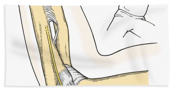 Illustration Of Elbow Ligaments Beach Towel