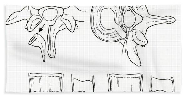 Illustration Of Spinal Disk Pathologies Beach Towel