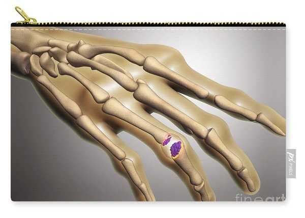 Conceptual Image Of Rheumatoid Carry-all Pouch