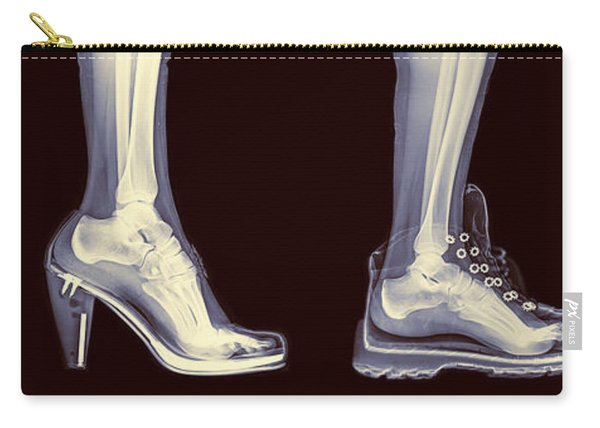 Different Shoes X-ray  Carry-all Pouch
