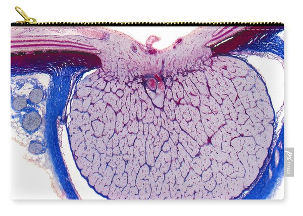 Optic Disk And Optic Nerve, Lm Carry-all Pouch