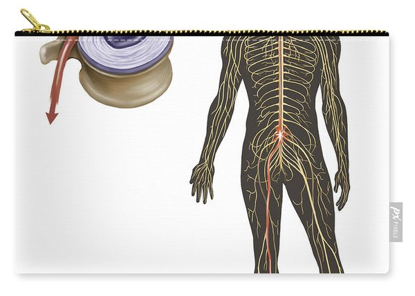 Sciatica Caused From Herniated Disc Carry-all Pouch
