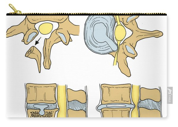 Illustration Of Spinal Disk Pathologies Carry-all Pouch
