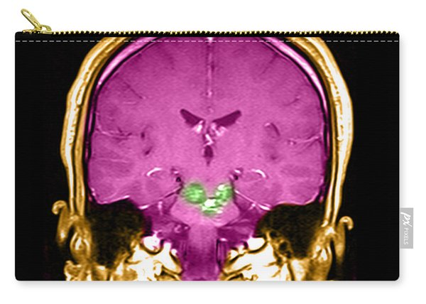 Mri Brainstem Cavernous Malformations Carry-all Pouch