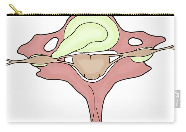 Illustration Of Herniated Spinal Disk Carry-all Pouch