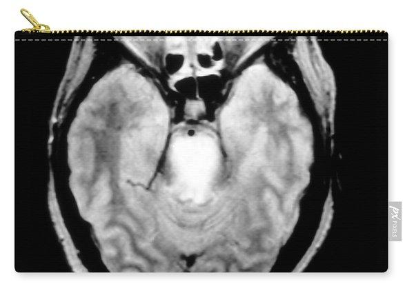 Mri Of Brainstem Glioma Carry-all Pouch
