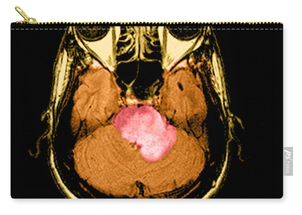 Mri Of Acute Ms Carry-all Pouch