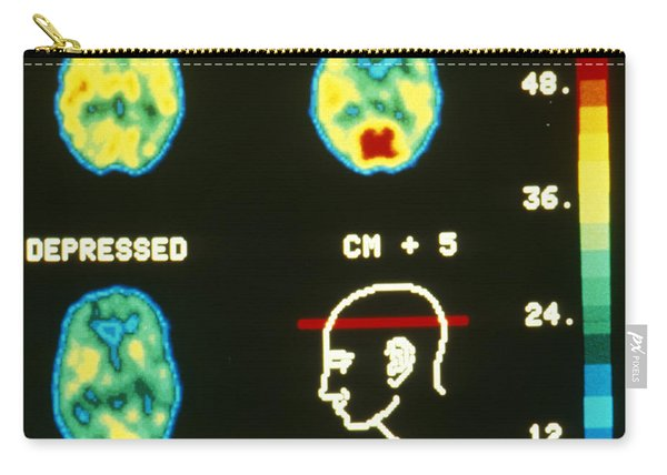 Brain Scans Carry-all Pouch
