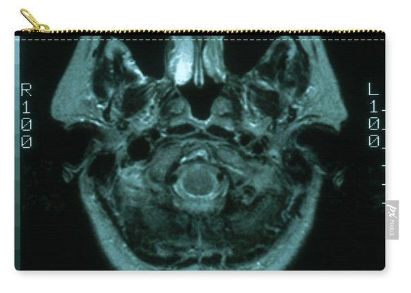 Mri Of Normal Brain Carry-all Pouch