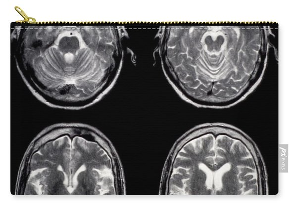 Normal Brain Of 65 Year Old Woman, Mri Carry-all Pouch