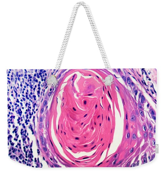 Squamous Cell Carcinoma, Keratin Pearl Weekender Tote Bag