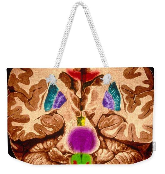 Brain, Coronal Section Weekender Tote Bag
