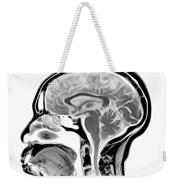 Sagittal Mri Of The Brain Weekender Tote Bag