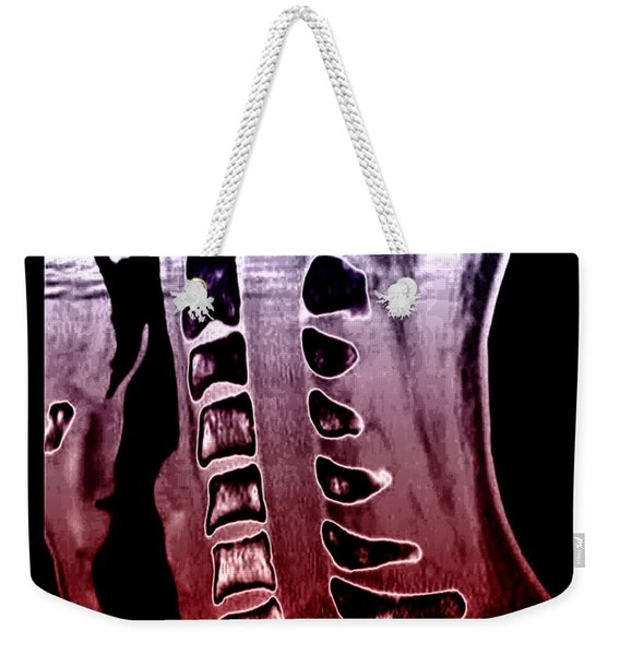 Sickle Cell Osteopathy, Ct Scan Weekender Tote Bag