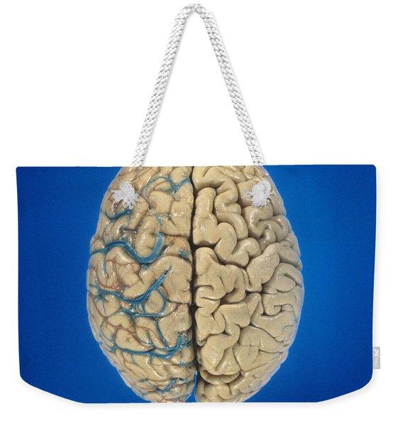 Superior View Of Brain Weekender Tote Bag