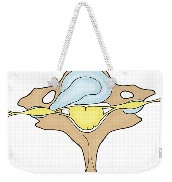 Illustration Of Herniated Spinal Disk Weekender Tote Bag