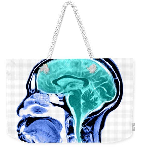 Sagittal View Of An Mri Of The Brain Weekender Tote Bag