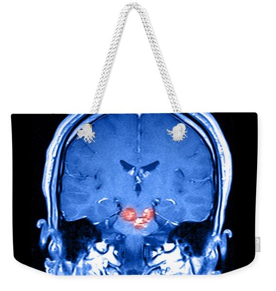 Mri Brainstem Cavernous Malformations Weekender Tote Bag