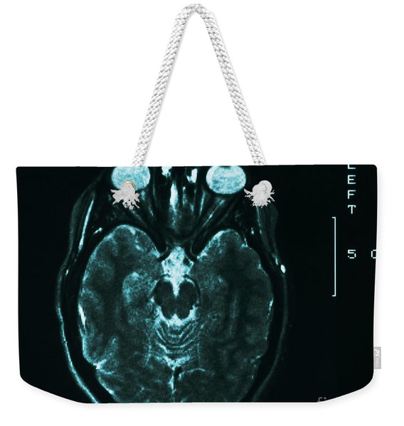 Mri Of Normal Brain Weekender Tote Bag