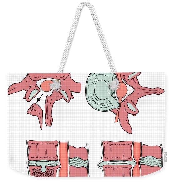 Illustration Of Spinal Disk Pathologies Weekender Tote Bag