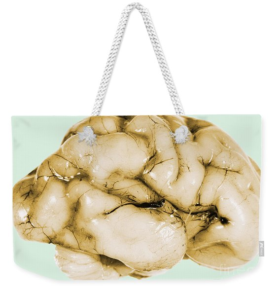 Brain Weekender Tote Bag