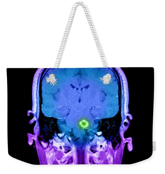 Mri Of Acute Ms Weekender Tote Bag