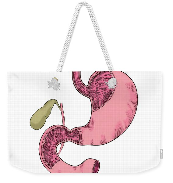 Illustration Of Stomach And Duodenum Weekender Tote Bag