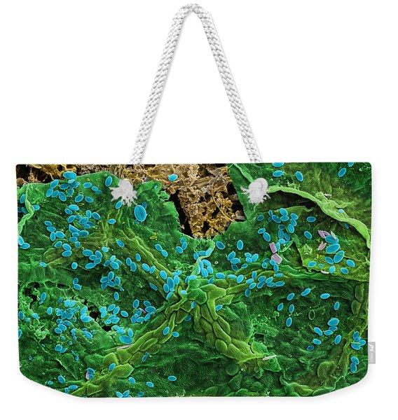 Diatoms Eating A Maple Leaf Weekender Tote Bag