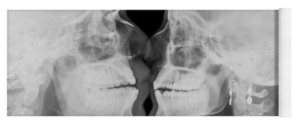 X-ray Kissing Yoga Mat