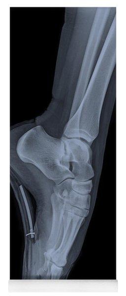 Ballet Dancer X-ray 2 Yoga Mat