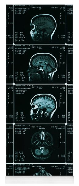 Mri Of Normal Brain Yoga Mat
