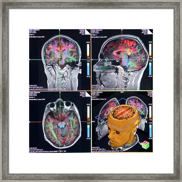 Advanced Mri Brain Scans Framed Print by Philippe Psaila/science Photo Library