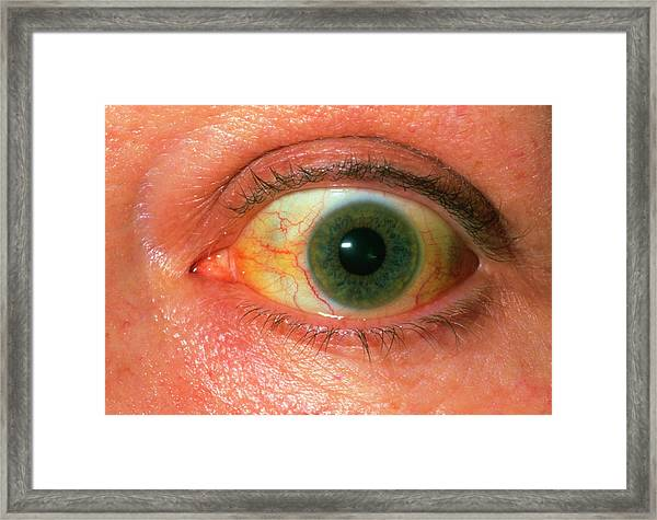 Alcoholic Jaundice Framed Print by Dr P. Marazzi/science Photo Library
