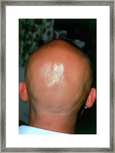 Alopecia Areata (hair Loss) Over The Scalp Of Man Framed Print by Dr P. Marazzi/science Photo Library