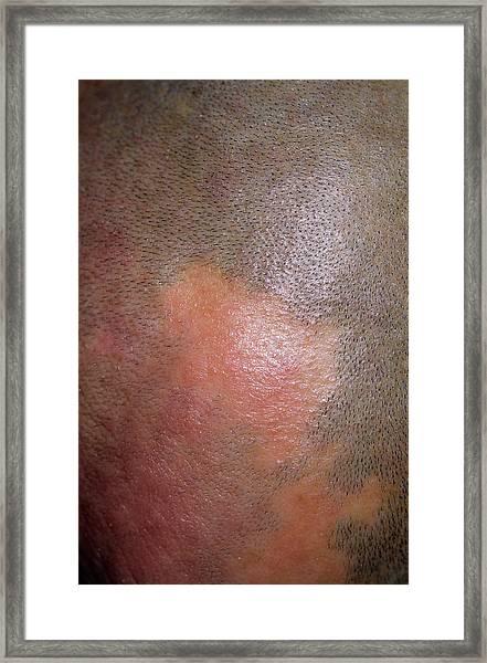 Alopecia Framed Print by Dr P. Marazzi/science Photo Library