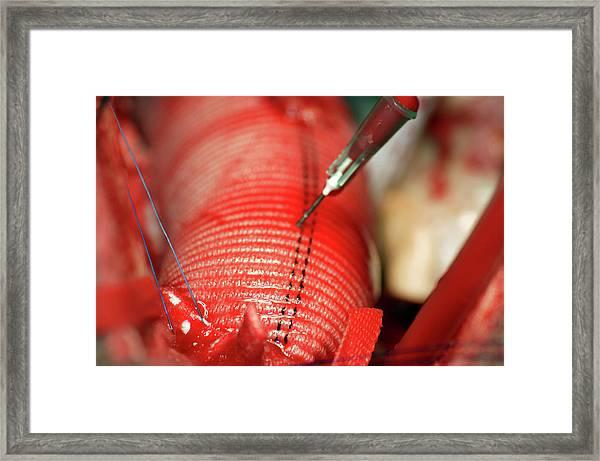 Aorta Surgery Framed Print