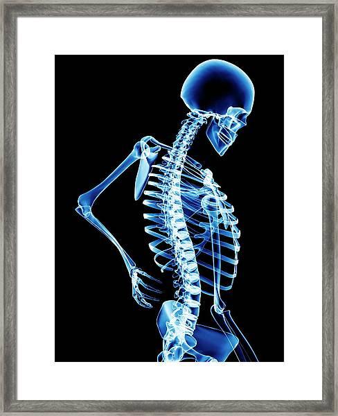 Back Pain Framed Print by Pasieka