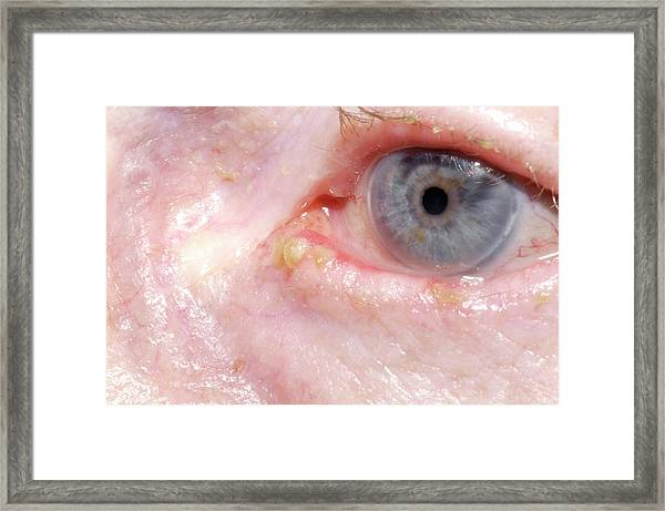 Bleeding Eye Framed Print