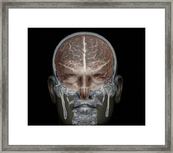 Brain And Skull Anatomy Framed Print