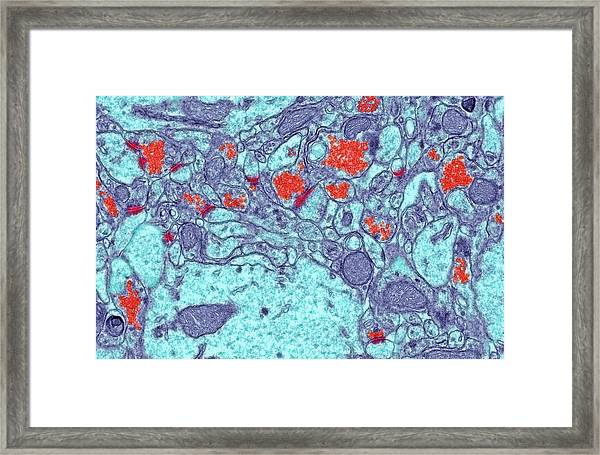 Brain Synapses Framed Print by Steve Gschmeissner/science Photo Library