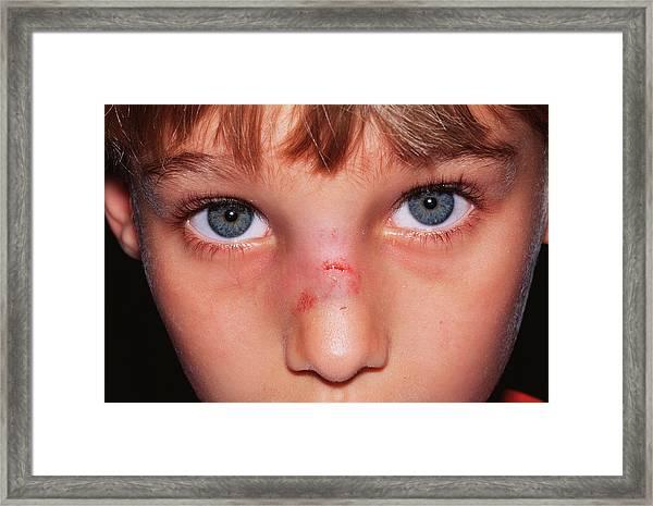 Broken Nose Framed Print