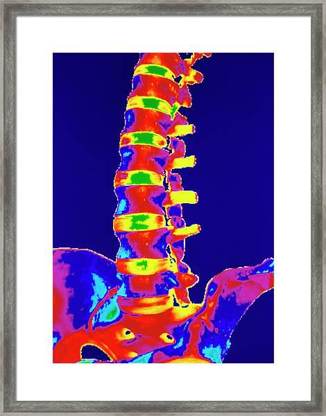 Coloured 3-d Ct Scan Of Lower Spine Framed Print