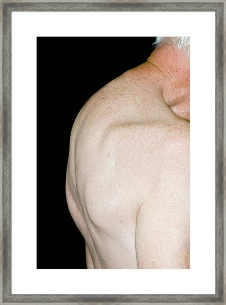 Curved Spine Due To Osteoporosis Framed Print