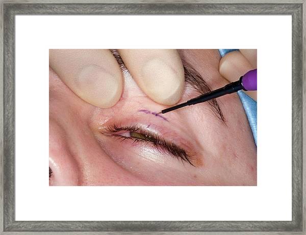 Eyelid Surgery Framed Print