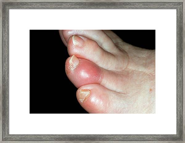 Gout Framed Print