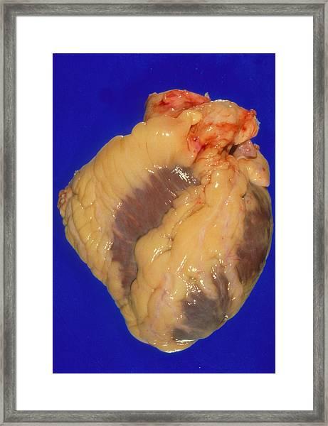 Gross Specimen Of A Healthy Human Heart Framed Print