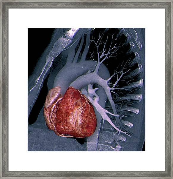 Healthy Heart Framed Print