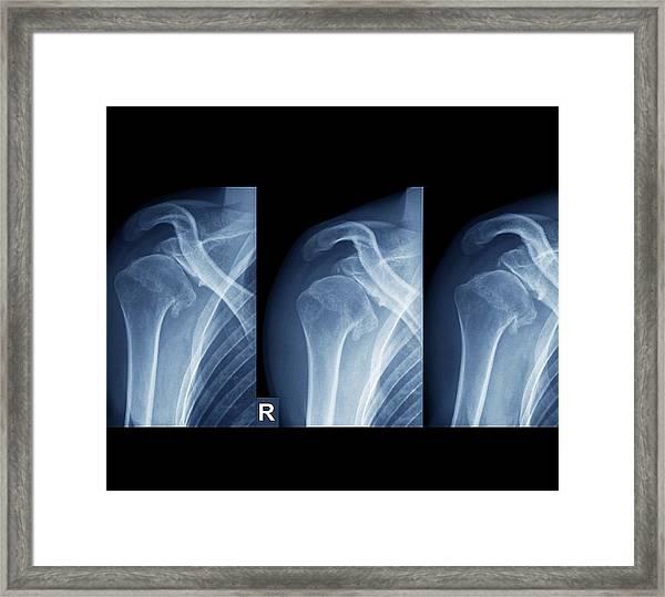 Injured Shoulder Framed Print